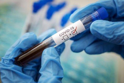 У громаді 19 січня нових випадків захворюваня на COVID-19 не зареєстровано