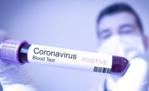 Рівень захворюваності на  COVID-19 знизився